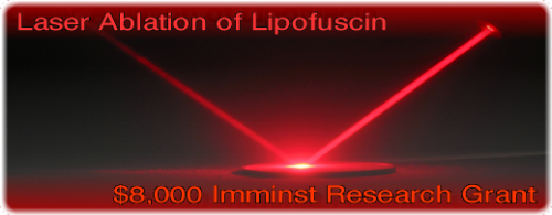laser ablation of lipofuscin unlimited lifespans research project.png