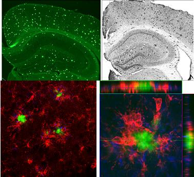 Brain histology - microglia